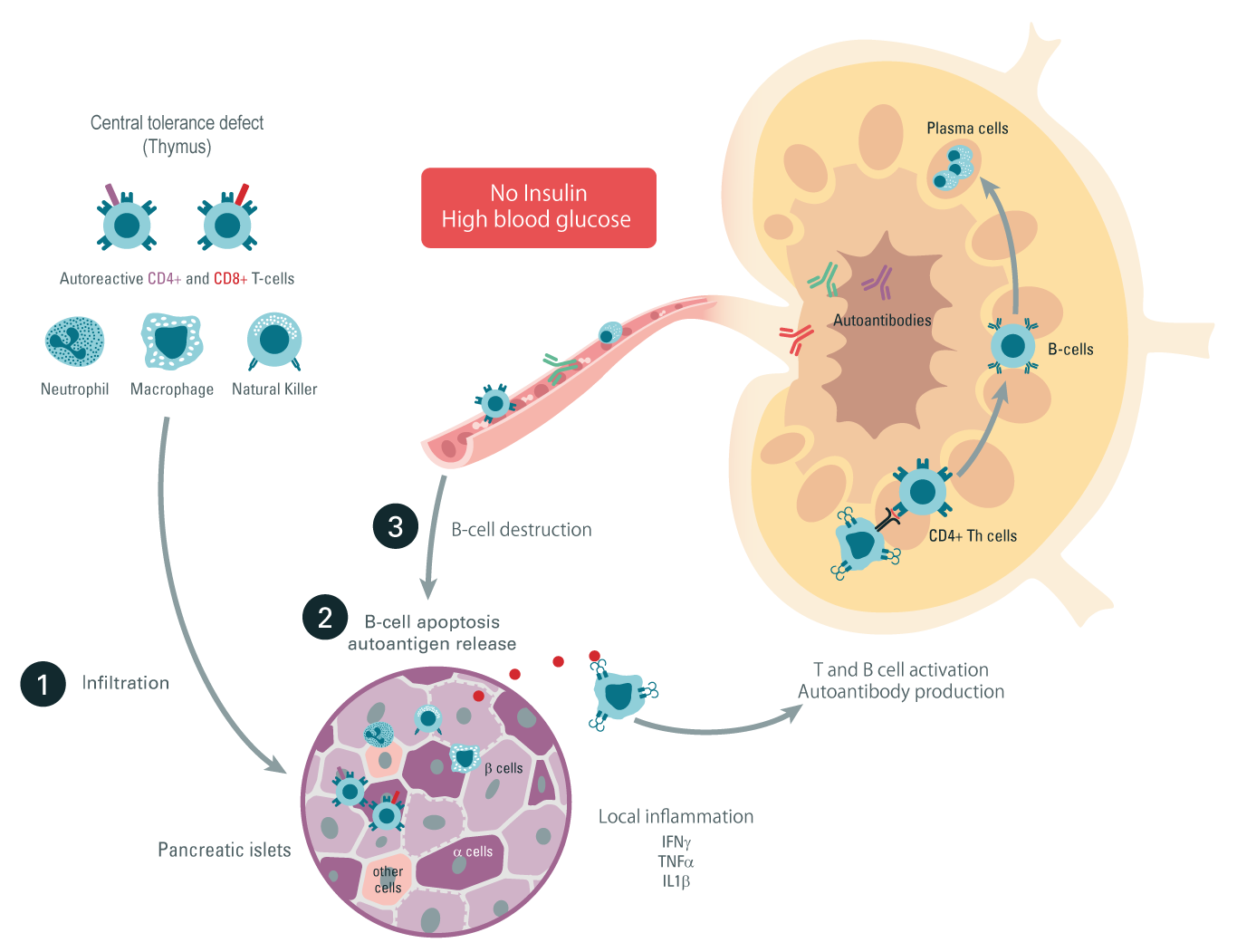 Type 1 diabetes inflammatory pathway
